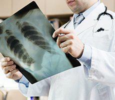 Bronchitis and Pneumonia